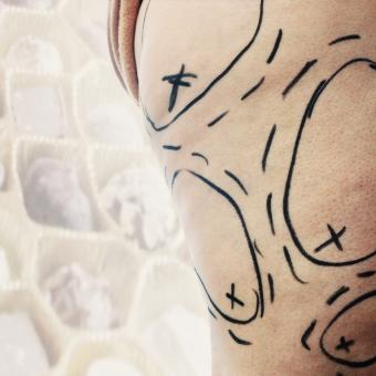 Woman's thigh marked for liposuction